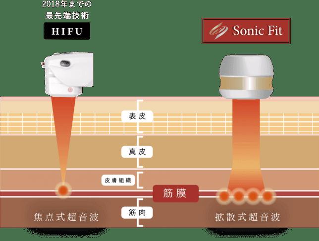 sonicfit